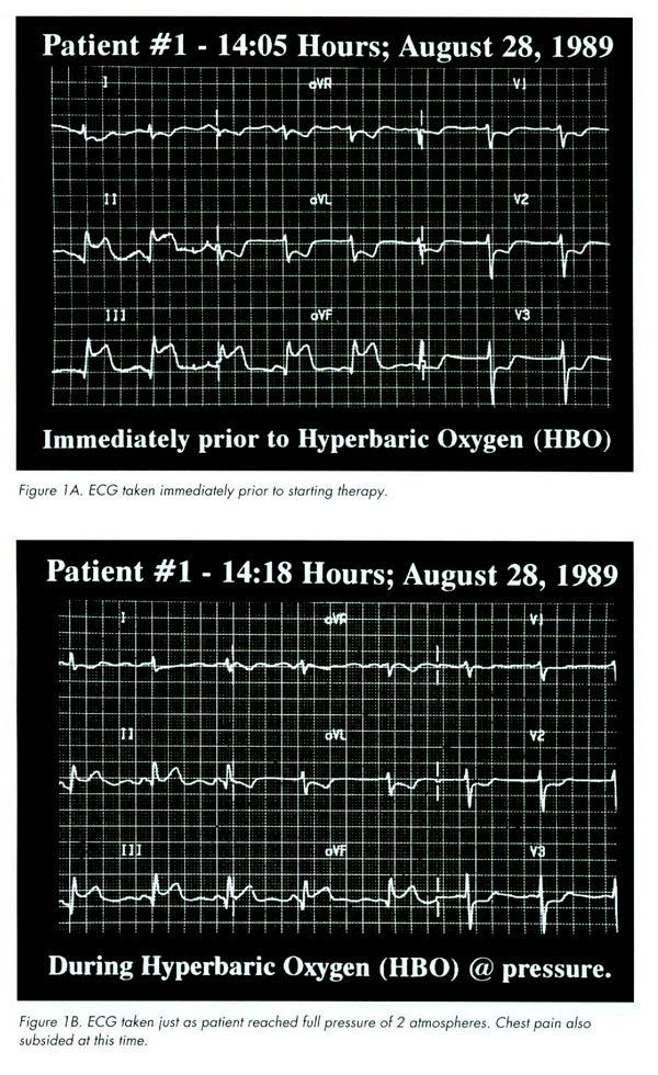 Effects of HBOT on Cardiology example #1